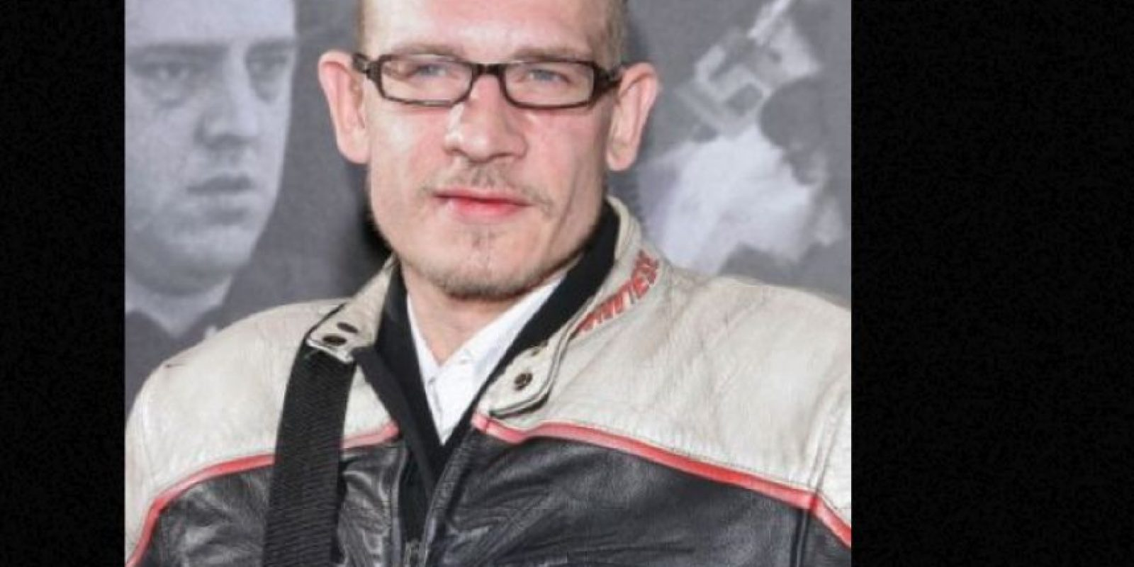 Se hizo aficionado a las drogas y el alcohol. En 1995 le amputaron la pierna, luego de manejar imprudentemente su moto. Le hicieron 17 cirugías para parar la infección, que lo terminó matando. Foto:vía Getty Images