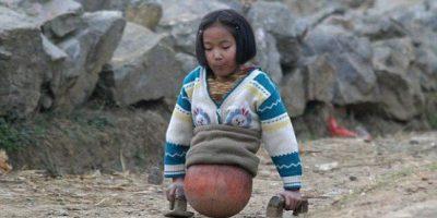 La niña que usaba un balón para caminar creció y esto usa ahora