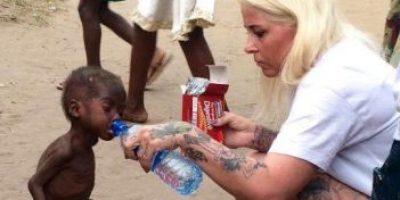 El niño nigeriano que impactó al mundo ya se recuperó y así está ahora