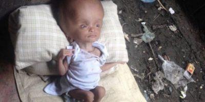Pequeña con hidrocefalia fue rescatada del basurero y 2 años después se recupera y así luce