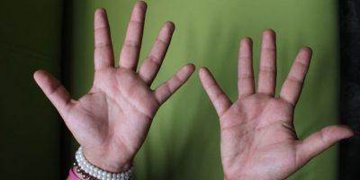 2. Sin embargo, se debe evitar realizar presión y masaje en heridas de menos de seis meses. Foto:Foto: PublimetroMX/Nicolás Corte
