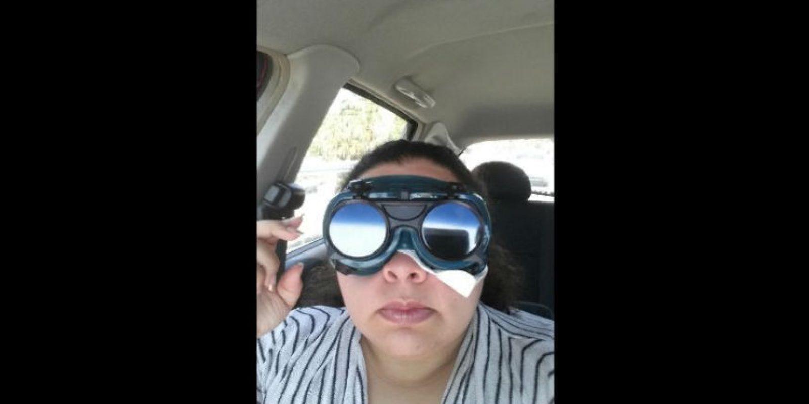 Después de que su cornea se rompiera, tuvo una biopsia. Foto:Imgur/minimonster1437