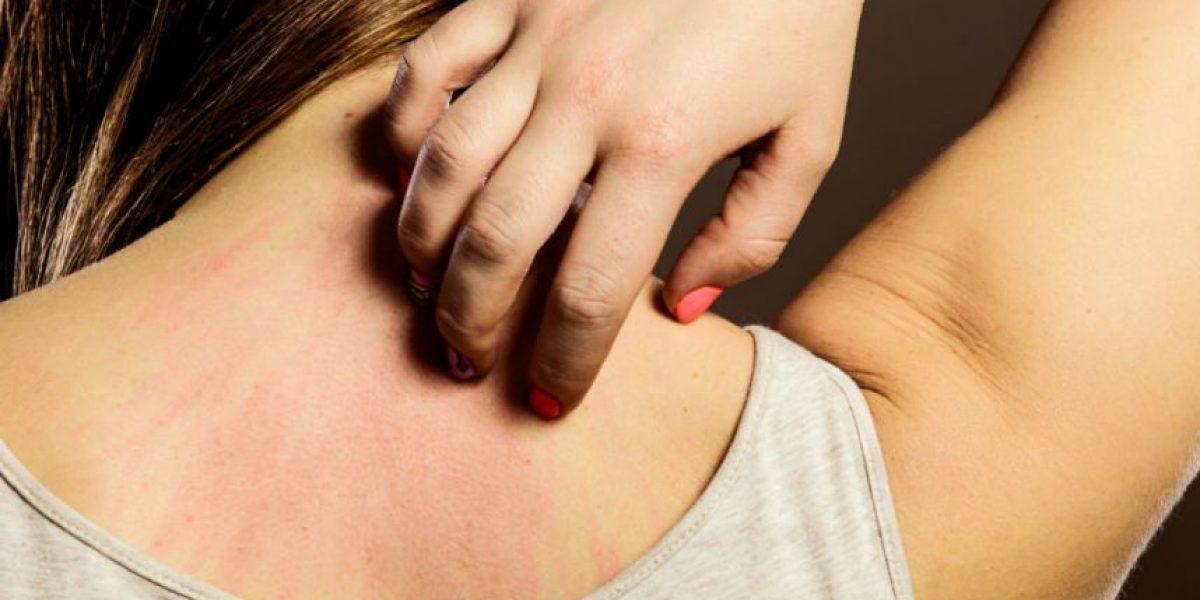 4 remedios para eliminar la resequedad de la piel