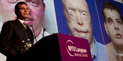 El costo del trasplante fue estimado entre 850 mil y un millón de dólares. Foto:vía AP