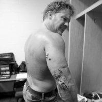 Su brazo derecho fue el más lastimado. Foto:WWE