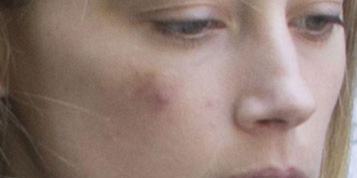 Amber Heard y otras famosas que mostraron las huellas del maltrato