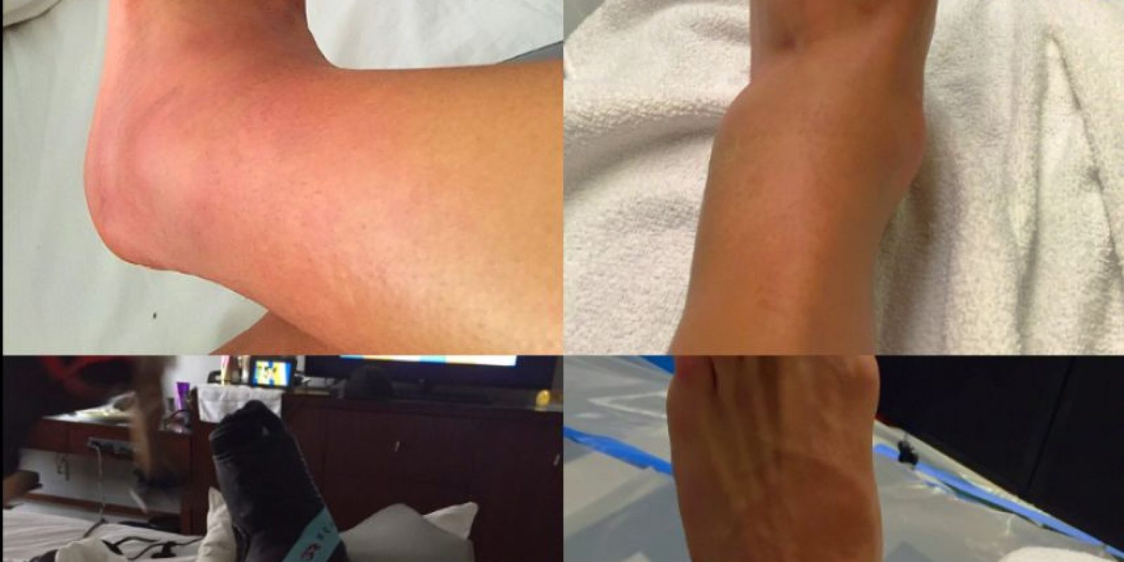 Luego del encuentro, Alexis Sánchez subió una foto del estado de su tobillo Foto:Getty Images