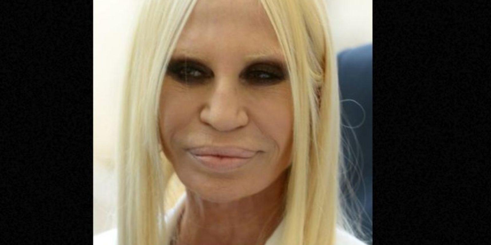 Donatella Versace se hizo adicta a las cirugías luego de la muerte de su hermano Gianni. Foto:vía Getty Images