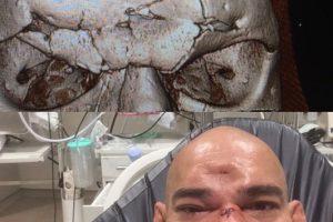 El golpe le causó una fractura en el cráneo Foto:Vía instagram.com/criscyborg