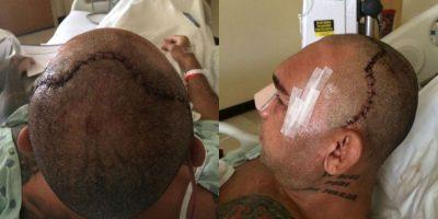 """Imágenes de la operación de """"Cyborg"""" Foto:MMA Fighting"""