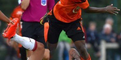 Futbolista francés pierde parte de la oreja por un pisotón
