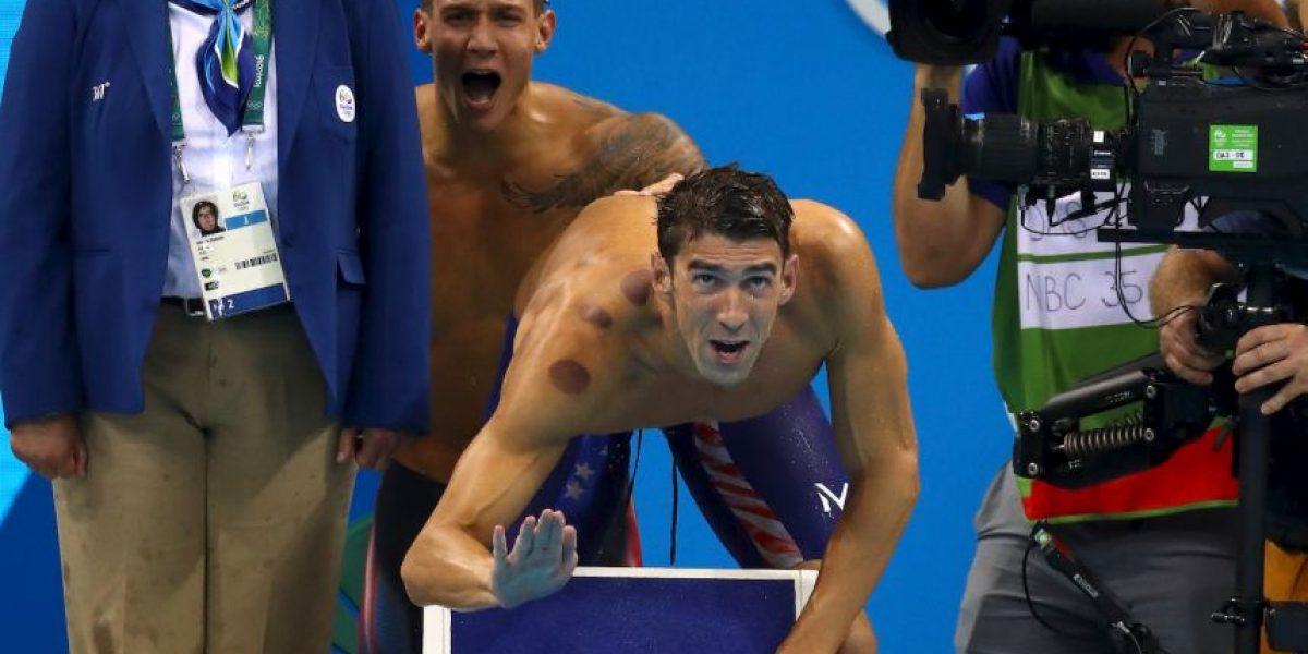Río 2016: ¿Por qué Phelps y otros atletas tienen manchas rojas?