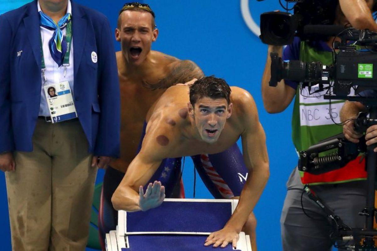 Michael Phelps y otros atletas olímpicos se han unido a la ventosaterapía Foto:Getty Images