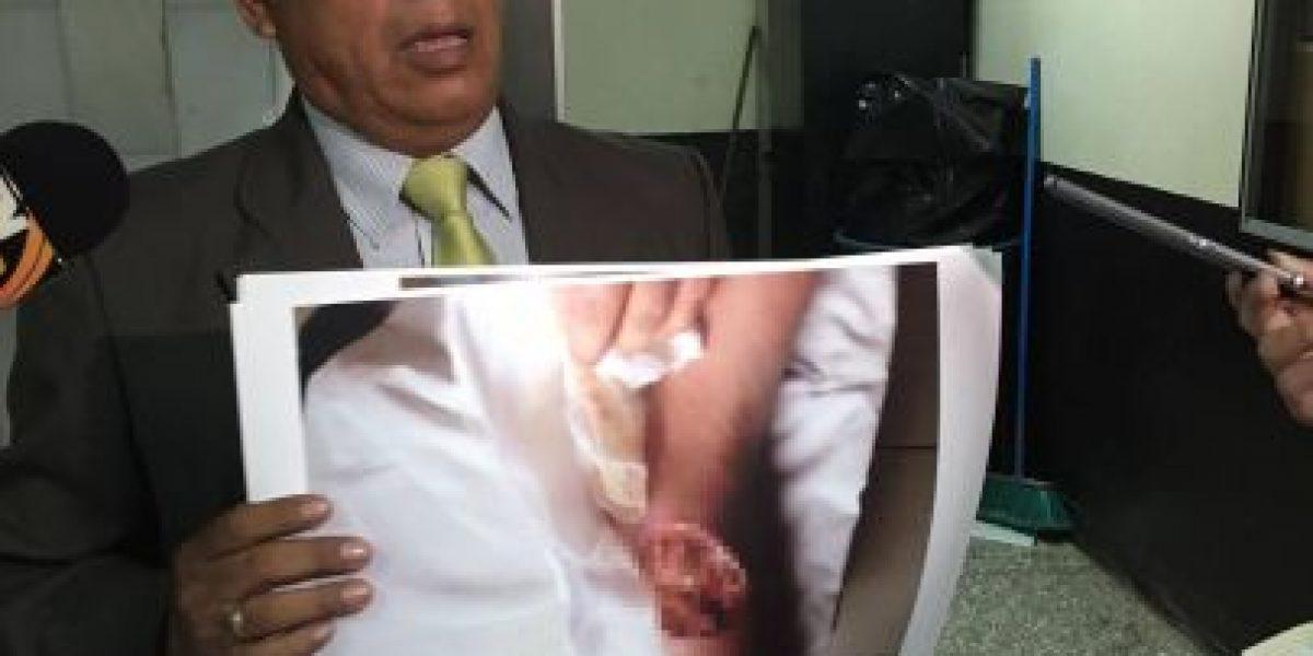 Reo podría sufrir amputación por falta de atención médica, denuncian familiares