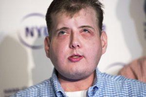 Él recibió el transplante de cara más extenso d ela historia Foto:AFP