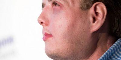 Así luce ahora el hombre al que le transplantaron el rostro