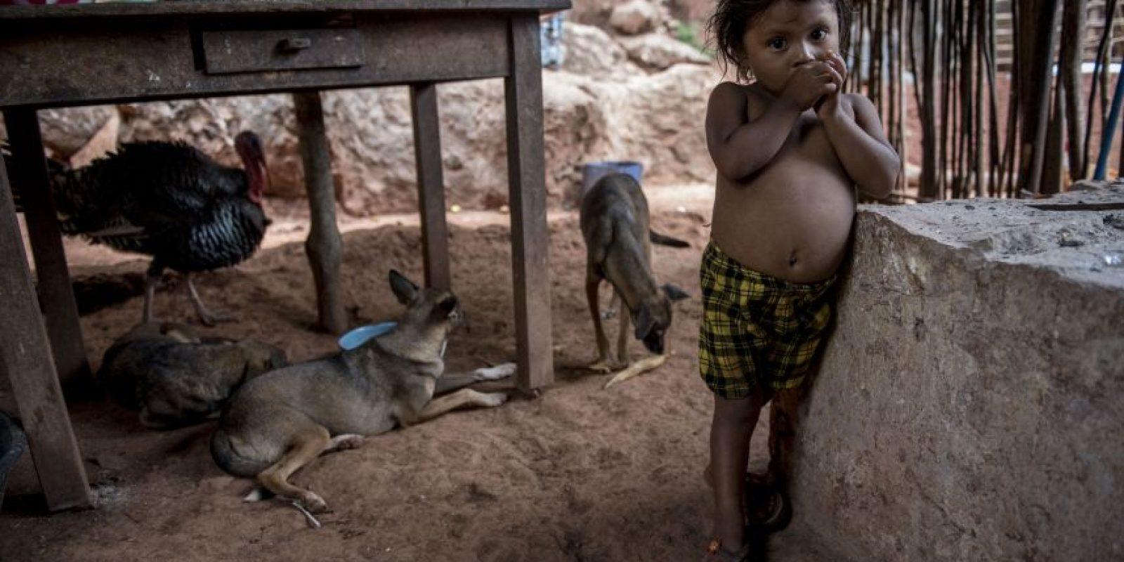 El abdomen abombado evidencia desnutrición tipo Kwashiorkor en niñas y niños. Foto:Oliver de Ros
