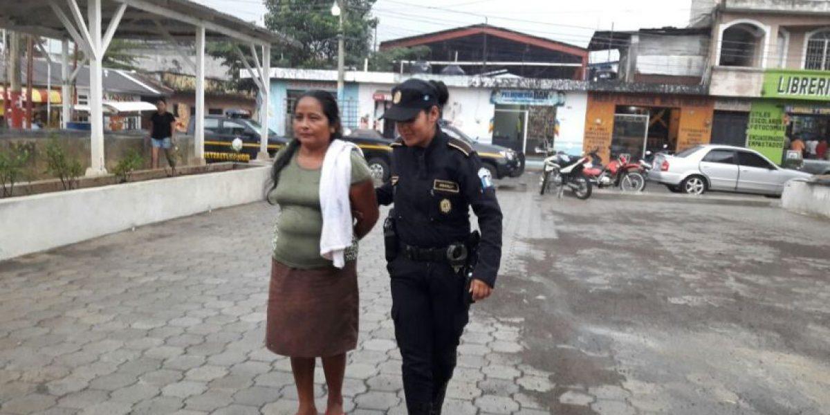Capturan a madrastra de niño que sufrió quemaduras en manos en Coatepeque