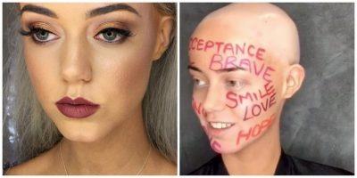 Esta modelo mostró su verdadera apariencia por su enfermedad