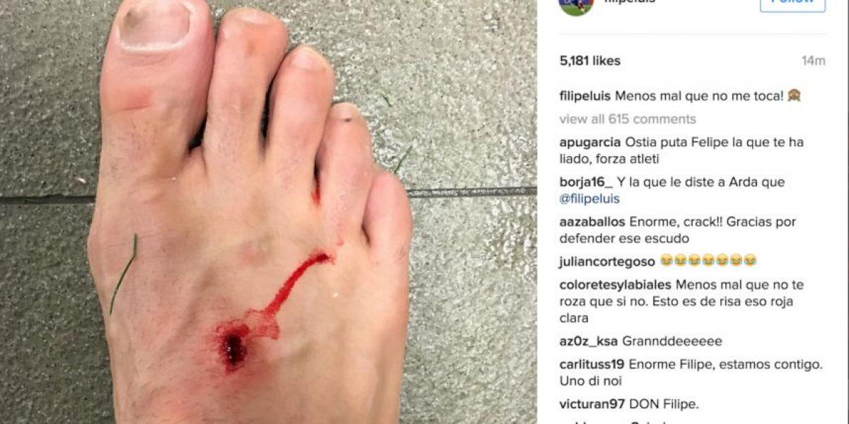 Así quedó el pie de Filipe Luis por dura entrada de Luis Suárez