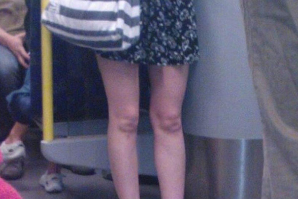 Foto:Tal parece que tienen caras de bebés en las rodillas