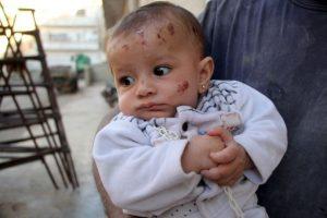 Así quedó la pequeña Wahida tras el bombardeo. Foto:AFP