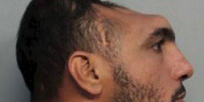 """Hombre con """"media cabeza"""" detenido de nuevo por intento de homicidio"""