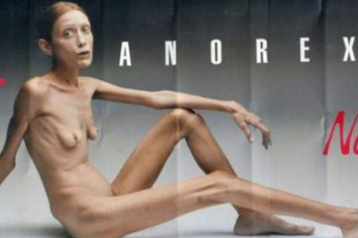 Getty Images Foto:Isabelle Caro protagonizó esta campaña en 2007. Pero eso no impidió que se muriera en 2010 de neumonía.
