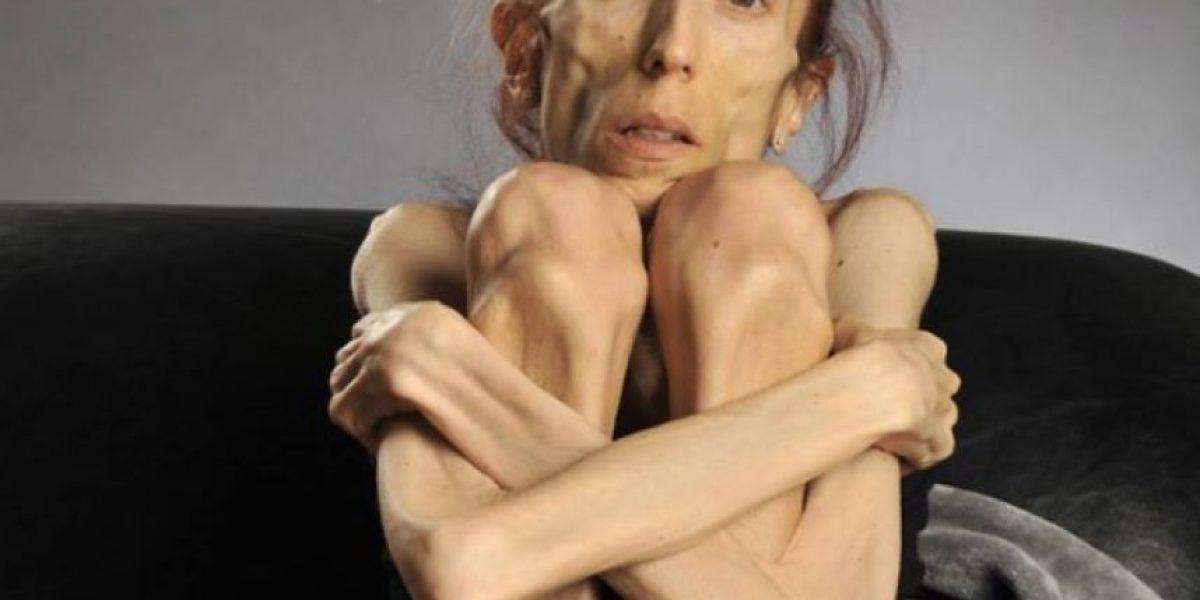 Familia de famosa anoréxica revela su verdadero estado de salud
