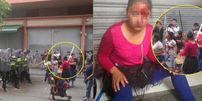 Usuarios ponen en evidencia a vendedora lesionada en disturbios que atacó a policías