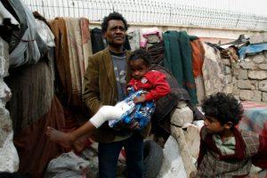 Un hombre de la comunidad Al Akhdam, que sgnifica 'sirviente' en árabe, sostiene en brazos a un niño herido en un barrio de chabolas en Saná el 9 de noviembre de 2016 Foto:Mohammed Huwais/afp.com
