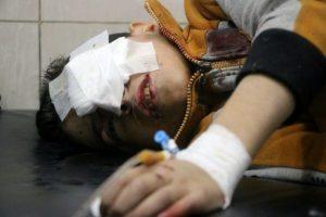 Un niño sirio herido descansa en una mesa en un hospital improvisado y abarrotado en la zona este de Alepo, el pasado 18 de noviembre al norte de Siria Foto:Thaer Mohammed/afp.com