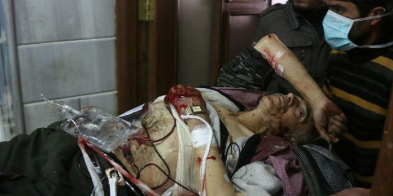Un hombre herido recibe atención en un hospital improvisado en la zona este de Alepo tras unos bombardeos aéreos y de artillería de las fuerzas gubernamentales, el pasado 18 de noviembre al norte de Siria Foto:Thaer Mohammed/afp.com