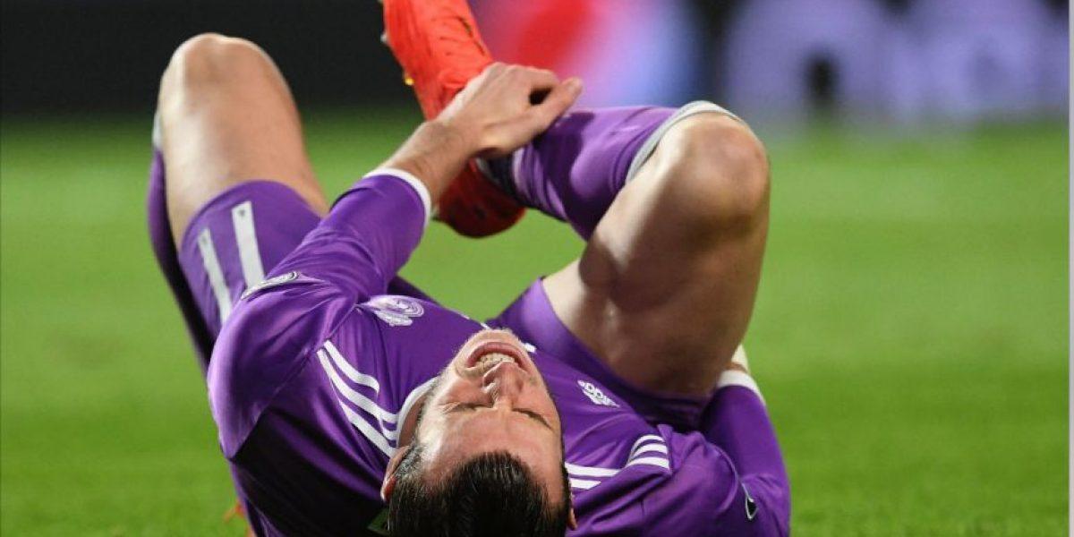 El temor del Real Madrid se confirmó hoy con Gareth Bale