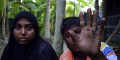 El refugiado rohingya Mujibulah muestra su mano, con un corte de machete de unos soldados que intentaban violar a su hermana Muhsena, sentada a su lado, el 24 de noviembre de 2016 en un campamento en Teknaf, Bangladés Foto:Sam Jahan/afp.com