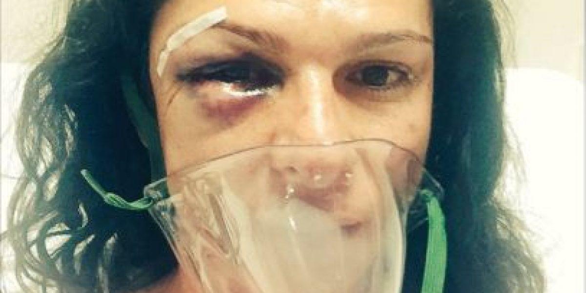 Tras brutal golpiza exatleta Ana Guevara es víctima de mensajes machistas y misóginos