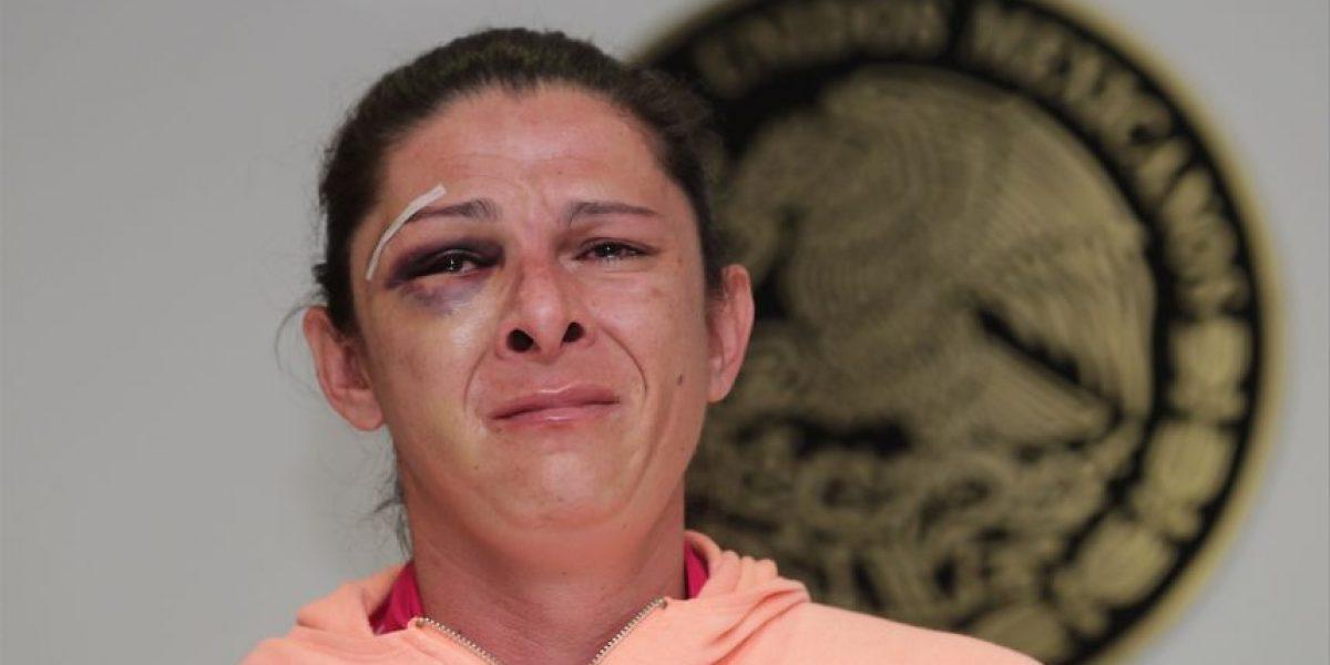 Hermana del supuesto agresor asegura que Ana Guevara miente