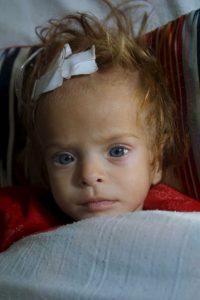 """""""Aunque rara vez aparece citada como causa directa, la malnutrición está presente en más de la mitad de las muertes de niños"""", informa la Organización Mundial de la Salud Foto:Getty Images"""