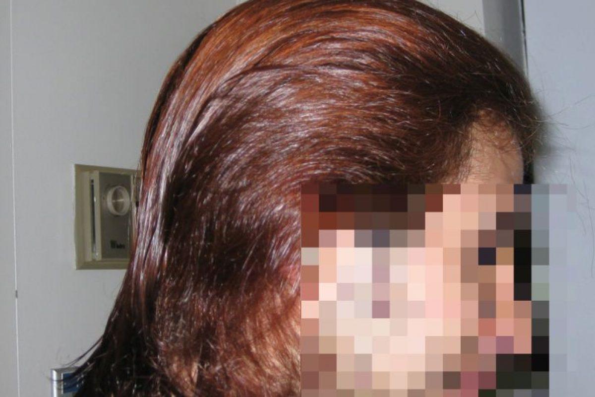 Y cuiden su pelo. Que no quede como estropajo. Foto:vía HairFails.com