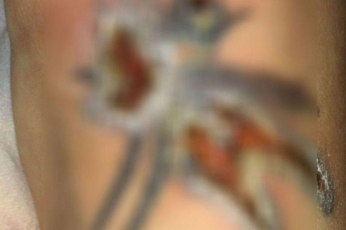 O mucho peor: abre heridas en la piel. Foto:vía Instagram/#infectedtatoo