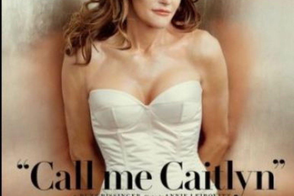 Jenner se sometió al menos a seis procedimientos para obtener su rostro nuevo. Foto:Vanity Fair