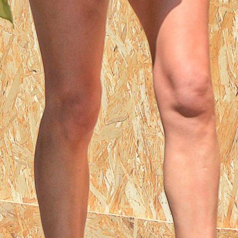 Así lucen ahora sus rodillas. Foto:The Grosby Group