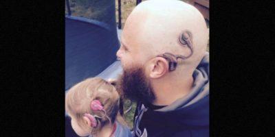 Alistair Campbell –padre de familia neozelandés– quería asegurarse de que su hija no se intimidara más por su nuevo aparato auditivo y decidió tatuarse uno en la cabeza. Foto:Facebook.com/anitaalistair.campbell