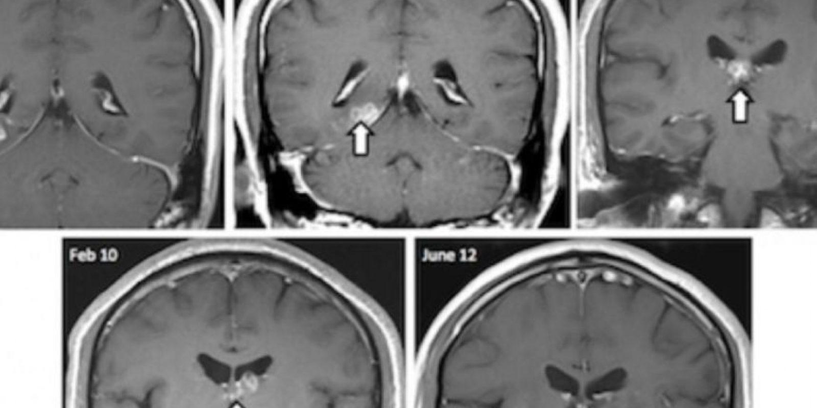 Un hombre tenía dolores de cabeza debilitantes. Hasta que en plenos exámenes descubrieron que tenía un gusano viviendo en su cerebro. Foto:vía Genome Biology