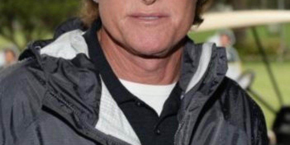 10 cambios de sexo tan impactantes como el de Bruce Jenner