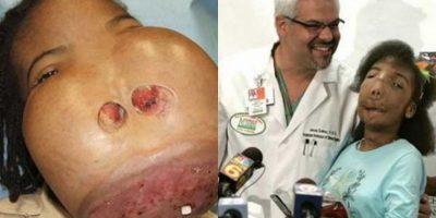 Marlie Casseus es una niña estadounidense qu nació con un tumor de 7.2 kilos (16 libras) en la cara. El tumor no le permitía comer ni respirar. Hoy, Marlie ya puede vivir de manera normal Foto:Desconocido