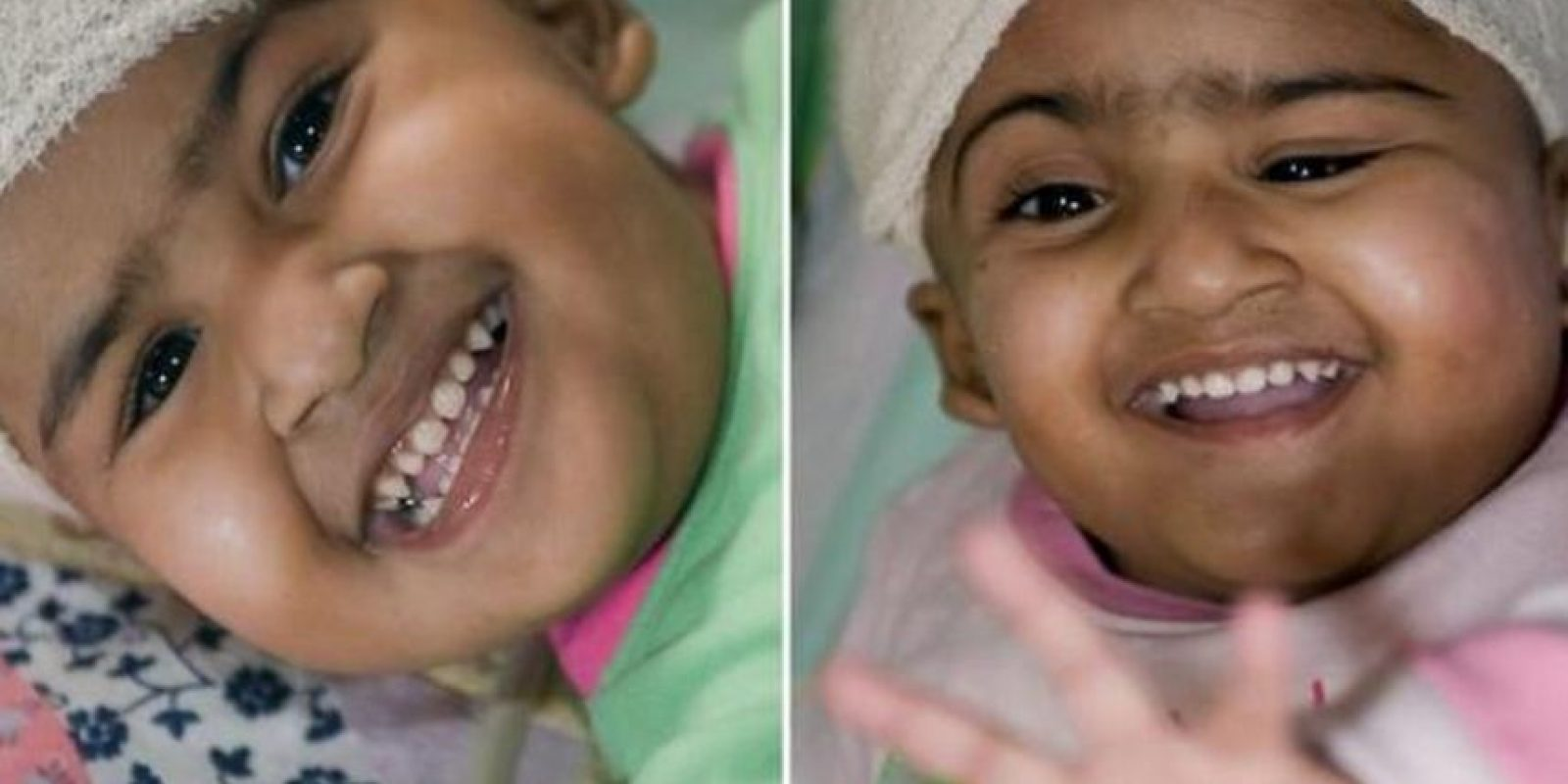 Trishna y Krishna nacieron en Bangladesh y son siamesas. Fueron separadas a los dos años de edad sin ningún tipo de daño cerebral Foto:Getty Images