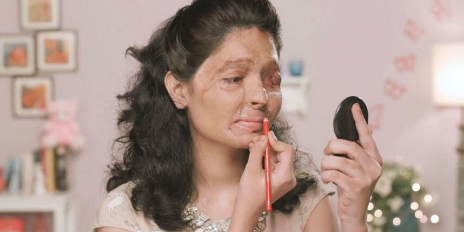 Los ataques con ácido causan estragos en la vida de miles de mujeres jóvenes que rechazan propuestas de matrimonio, insinuaciones sexuales o que se ven atrapadas en el fuego cruzado de las disputas domésticas. Foto:Vía Youtube