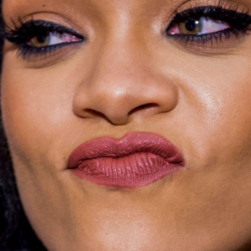 Las arrugas de Rihanna. Foto:vía Celebrity Closeup/Tumblr