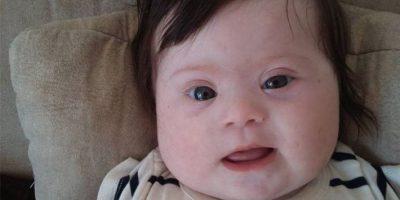Ella es Louise, una bebé con Síndrome de Down hija de una mujer llamada Caroline Boudet. Foto:vía Facebook/Caroline Boudet